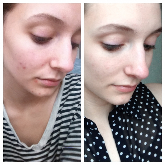 oil cleansing before and after